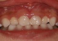 乳歯の陥入脱臼(治療後)