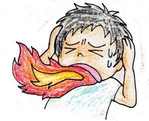 口腔灼熱症候群